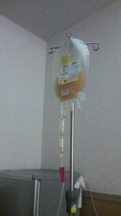 血小板の輸血