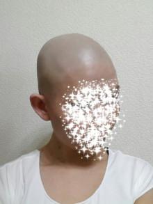 抗がん剤による脱毛の画像(最後の抗がん剤から1週間後)