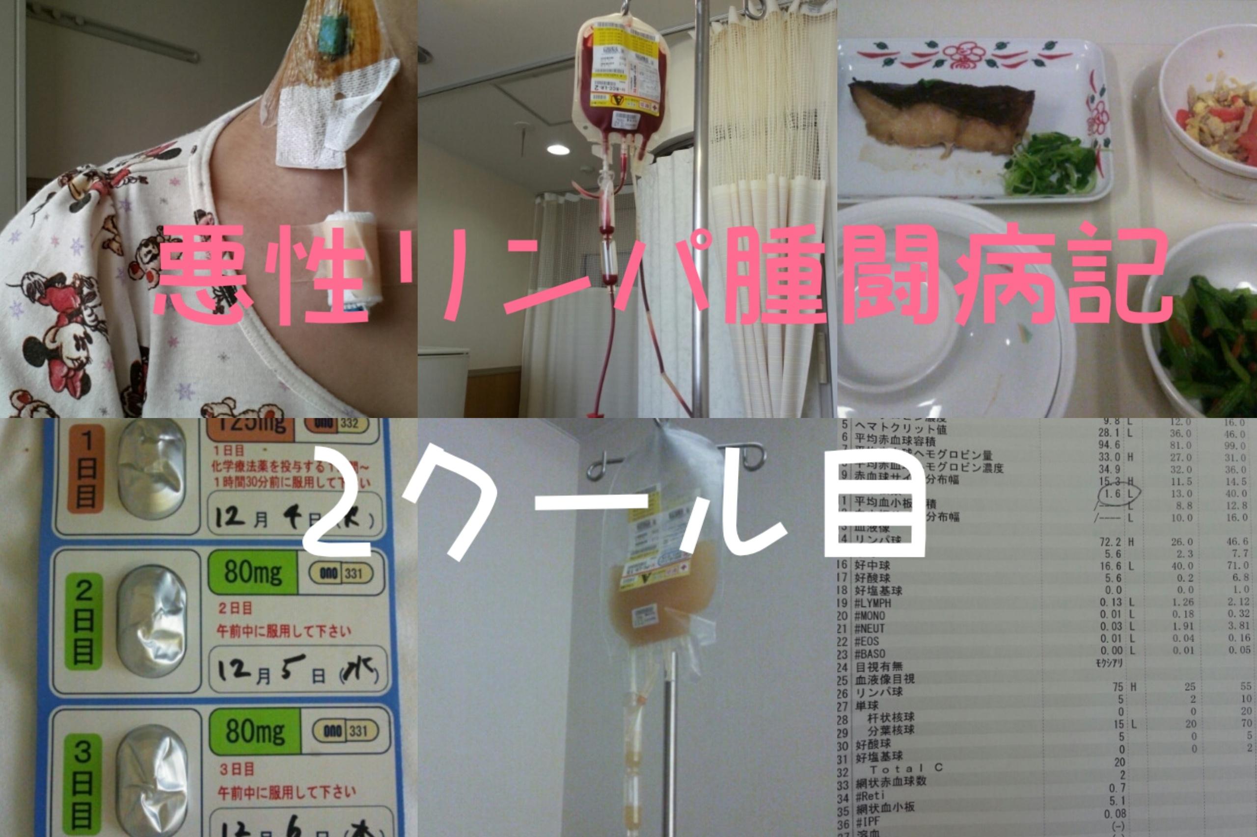 【悪性リンパ腫/2クール目】R-Hyper CVAD/R-MA療法開始!