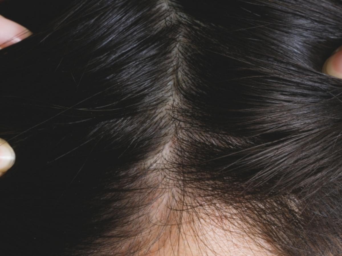 【徹底解説】ウィッグの人工頭皮で一番自然なのは?【種類と選び方】